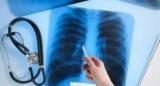 Каждый третий человек в мире заражен туберкулезом