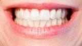 Ученые нашли способ восстановления зубной эмали